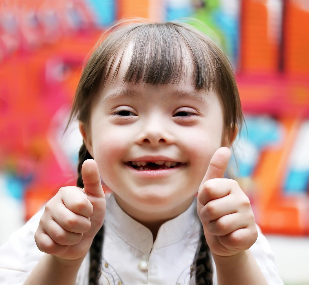Niña con Síndrome de Down / Bebés y más